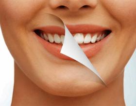 Отбеливание зубов: плюсы, минусы и особенности