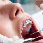 Профессия ортодонт: плюсы, минусы и особенности