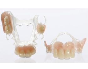 Ацеталовый зубной протез