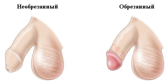 Обрезанный половой член у мужчин
