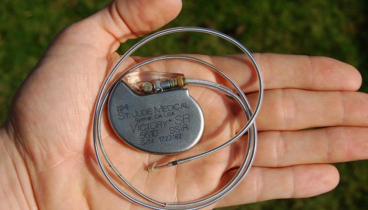 Кардиостимулятор сердца
