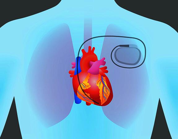Работа кардиостимулятора