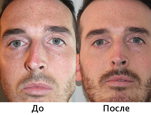 До и после септопластики