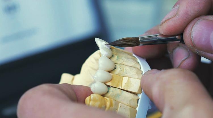 Техник делает зубы
