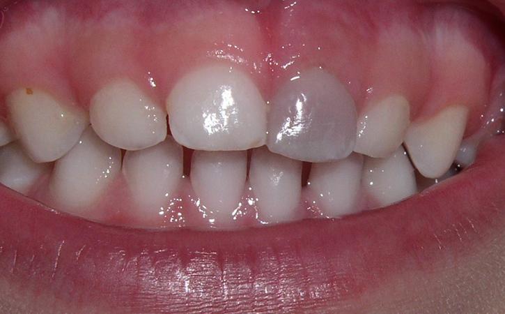 Зубы малыша
