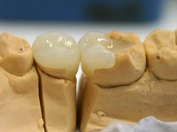 Вкладка на зуб