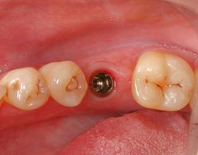 Одномоментная имплантация зубов — плюсы и минусы процедуры