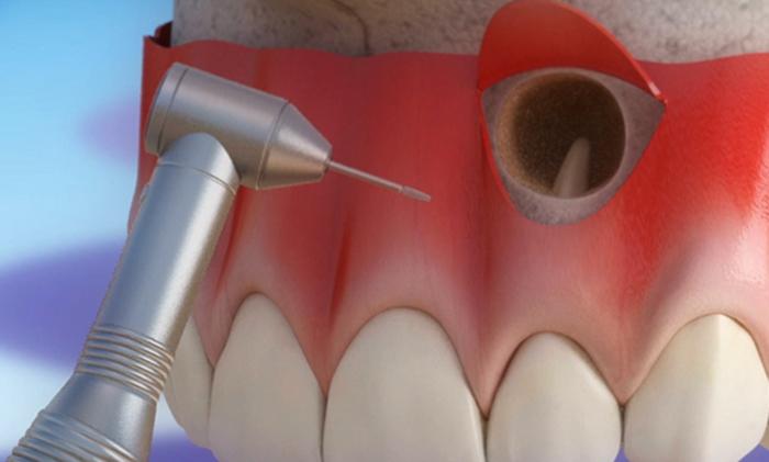 Вид резекции верхушки корня зуба
