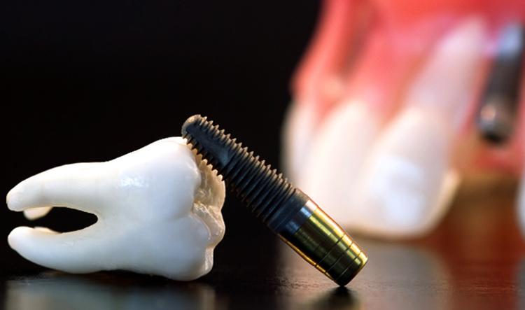 Зуб и имплант