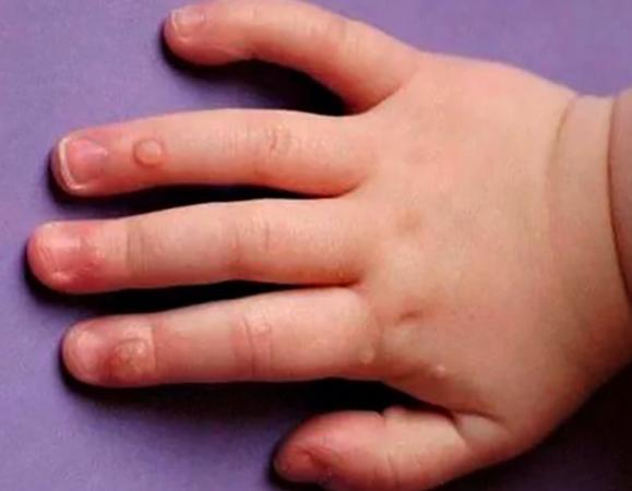 Бородавки на руке у ребенка