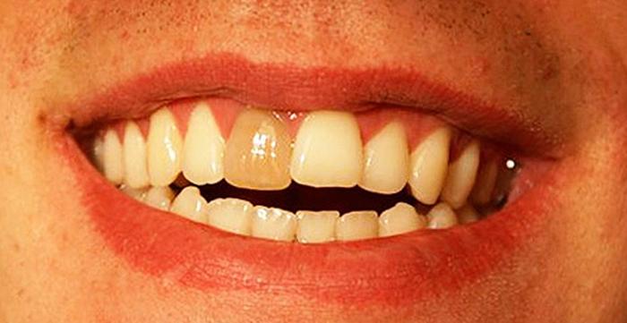 Мертвый передний зуб