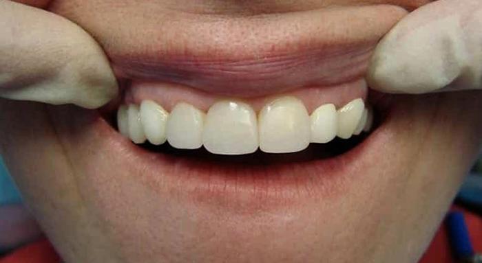 Восстановленные передние зубы