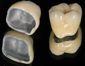 Зубы из металлопластика, их плюсы и минусы