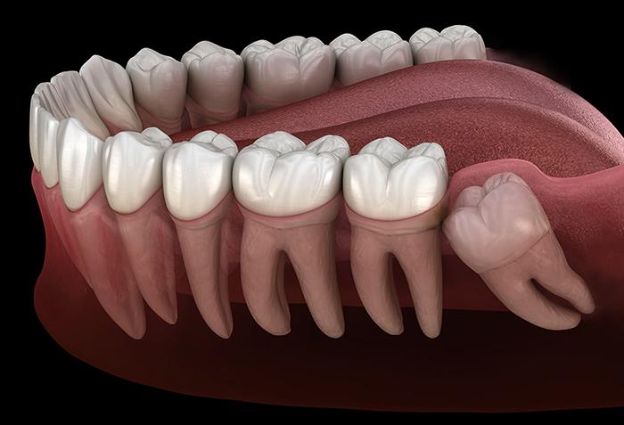 Как выглядит зуб мудрости