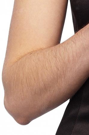 У девушки волосатые руки