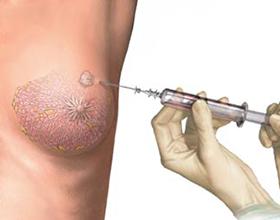 Больно ли делать биопсию молочной железы