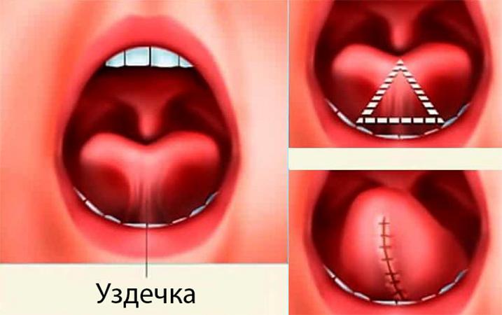 Уздечка и операция