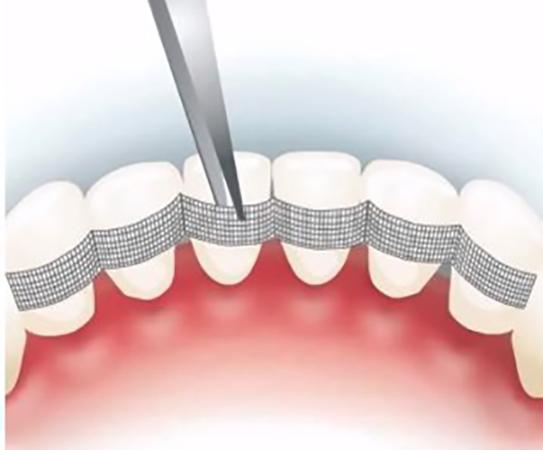 Как выглядит шинирование зубов