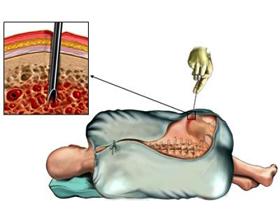 Сдача костного мозга — последствия для донора
