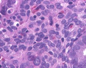 Причины и последствия хронического эндометрита