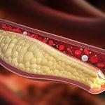Гиперхолестеринемия: что это, причины и последствия