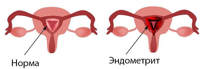 Норма и эндометрит