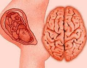 Причины и возможные последствия перинатальной энцефалопатии