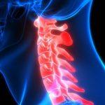 Перелом шейного позвонка и его возможные последствия