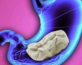 Если ребенок проглотил жвачку — какие могут быть последствия