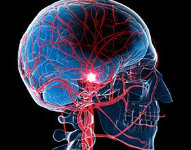 Последствия инсульта для организма человека