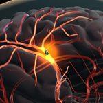 Повторный инсульт: причины и последствия