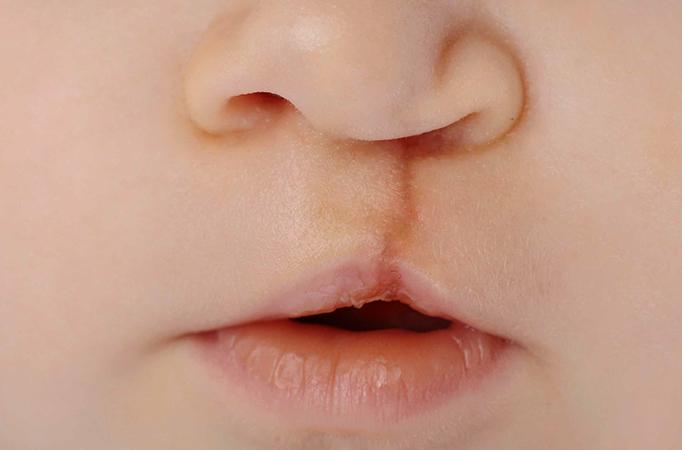 Вид заячьей губы