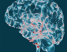 Болезнь Альцгеймера: причины и последствия