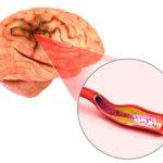 Инфаркт мозга — последствия для организма человека