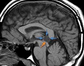 Киста эпифиза головного мозга: причины и последствия