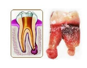 Киста зуба — причины и возможные последствия