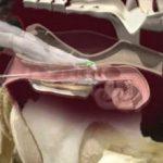 Плюсы и минусы искусственного осеменения коров