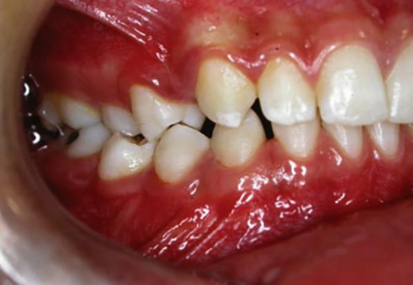 Как выглядит киста зуба
