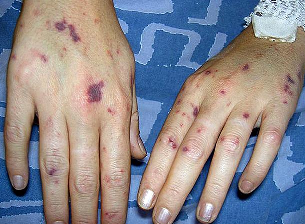 Последствие менингита
