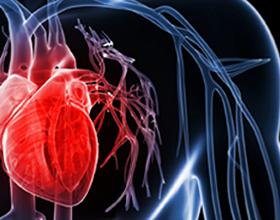 Причины и последствия инфаркта миокарда