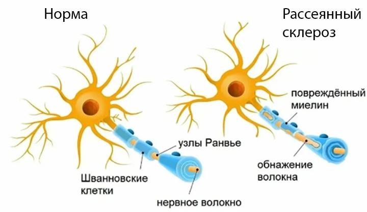 Норма и рассеянный склероз