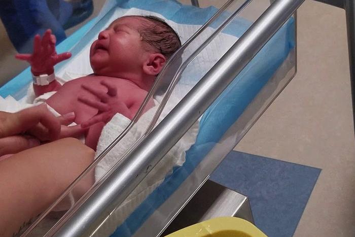 Остеомиелит у новорожденного