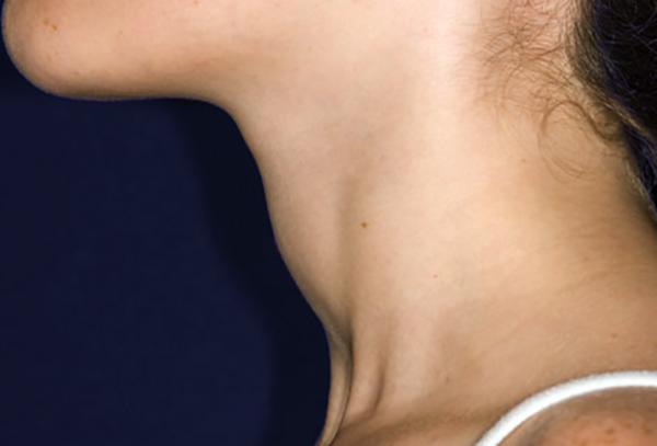 У женщины увеличена щитовидная железа