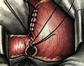 Какие могут быть последствия после резекции желудка