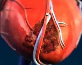 Рубец на сердце — причины появления и последствия