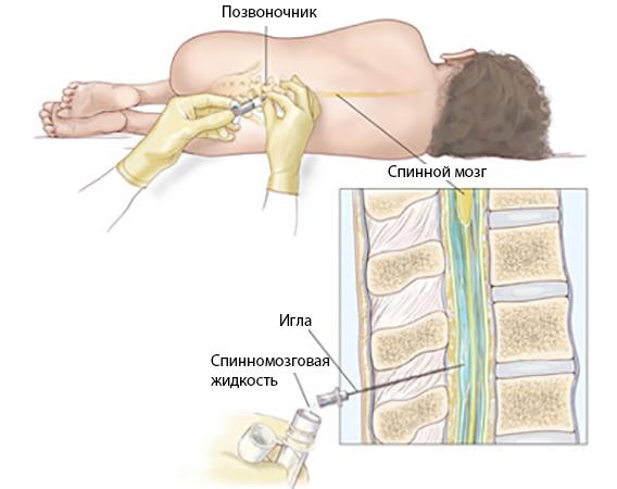 Пункция спинного мозга
