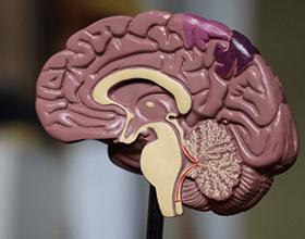 Последствия кровоизлияния в мозг