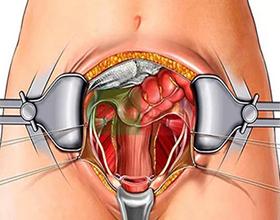 Последствия удаления яичников у женщин