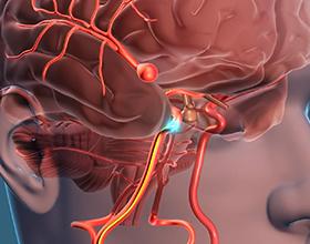Аневризма головного мозга — причины и последствия