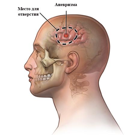 Трепанация при аневризме
